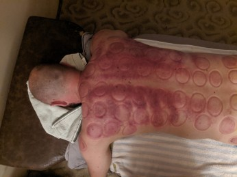 After Gua Sha and Cupping